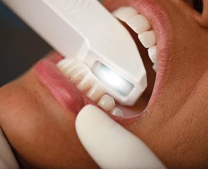 Digital Dentistry Intraoral Scanner