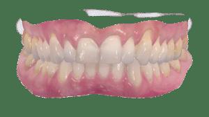 Teeth Dentistry
