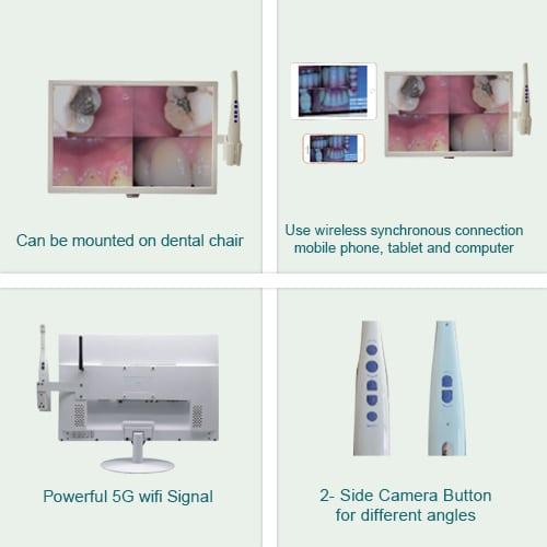 Intraoral Camera Key Highlights