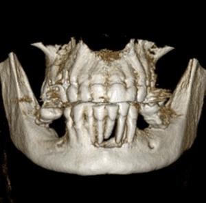 CBCT of periodontitis