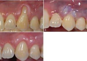 teeth 2