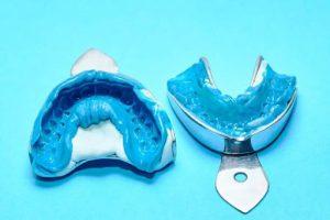 Analogue Way Of Dentistry